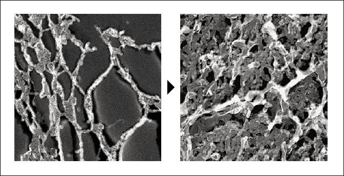 ECM1がコラーゲン構造を強化