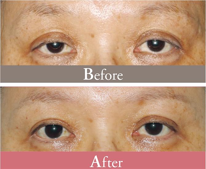 眼瞼下垂の手術の症例写真